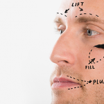 chirurgie esthetique homme